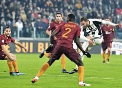 Juventus-Roma, si perde per la prodezza di un singolo: Higuain
